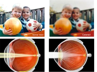 Normal Vision vs Cataract Vision